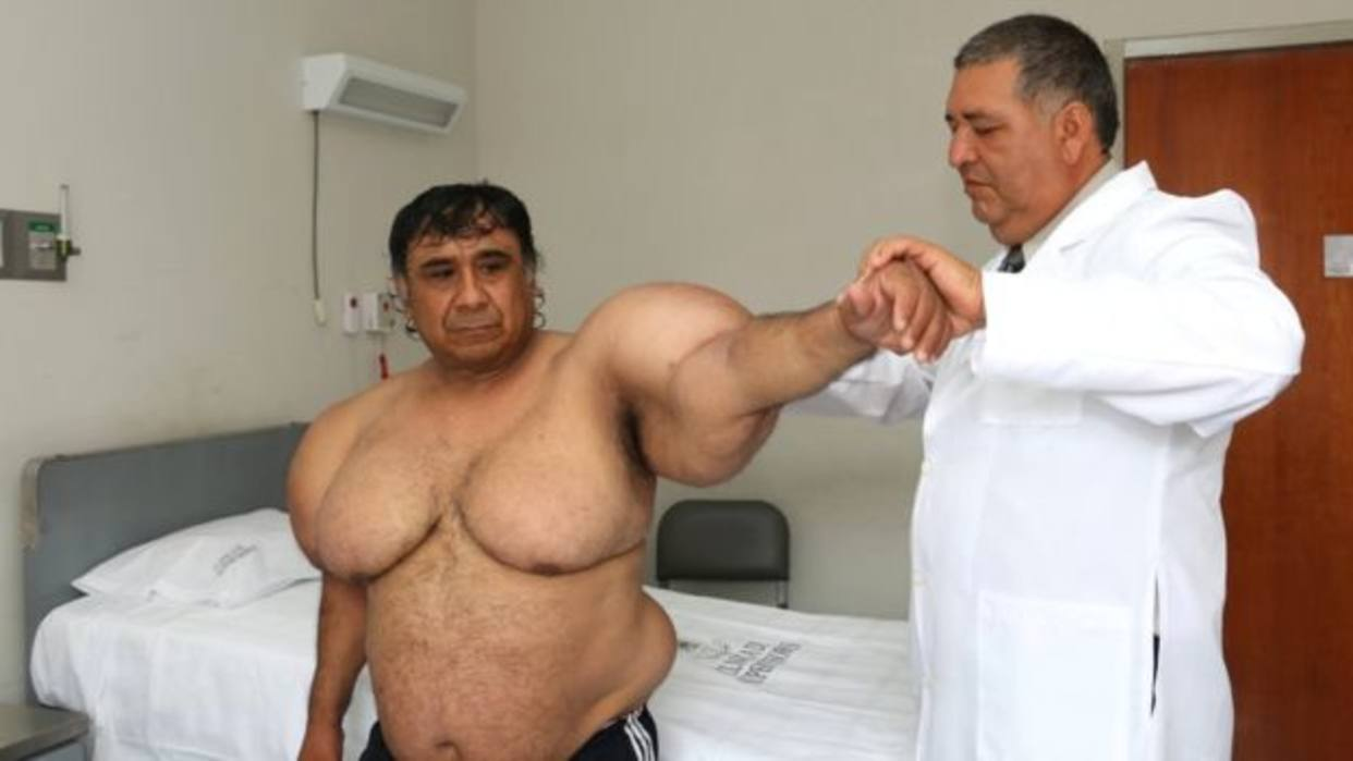 Peruvian Diver Whose Body Became Inflated