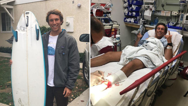 Surfer Survives to Shark Attack in California